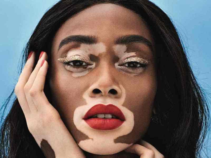 Une journée dédiée au vitiligo