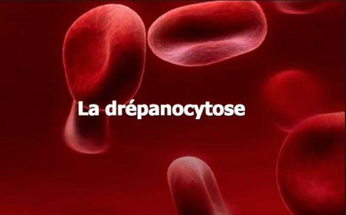 19 juin : journée mondiale de la drépanocytose