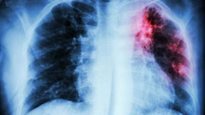 Journée mondiale contre la tuberculose