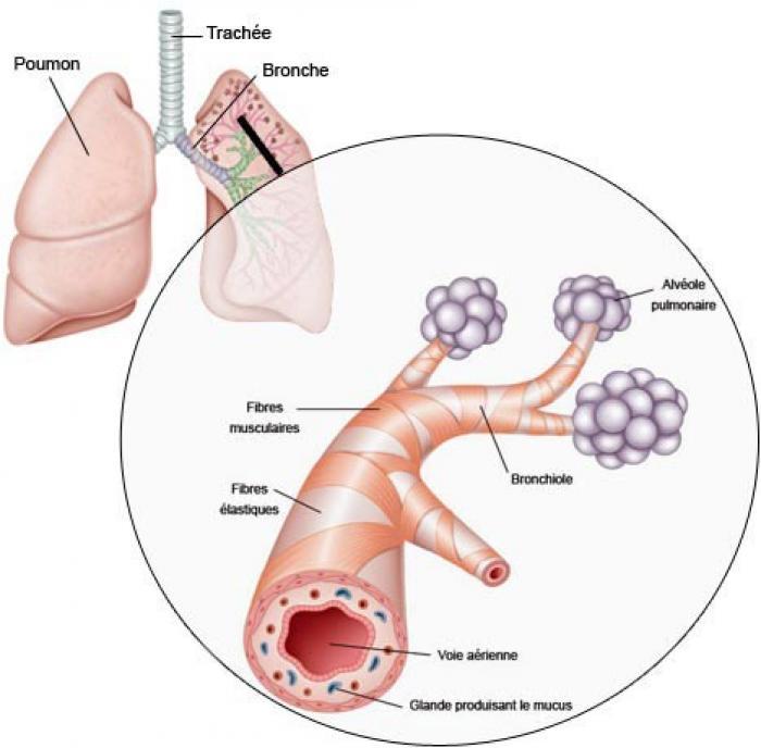 L'ARS alerte sur une épidémie de bronchiolite en Martinique